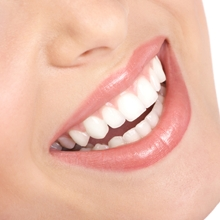cosmetic dentistry Sheffield, dental care Sheffield, aesthetic, teeth whitening, braces, tooth implants